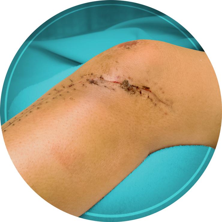 Serratia Marcescens Can Infect Surgical Wounds